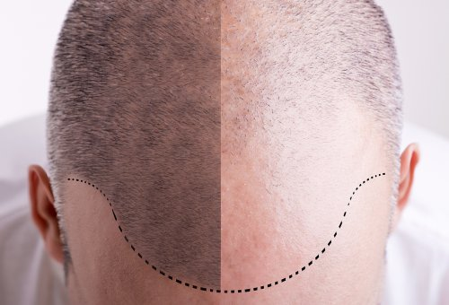 Hair Transplant Surgery in Georgia